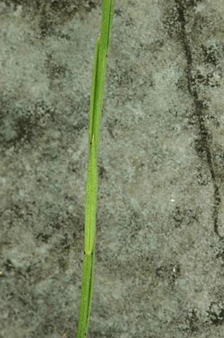 Image http://bioimages.vanderbilt.edu/lq/hessd/wlisu4-stnote-glands-0569-1x1e5313.jpg